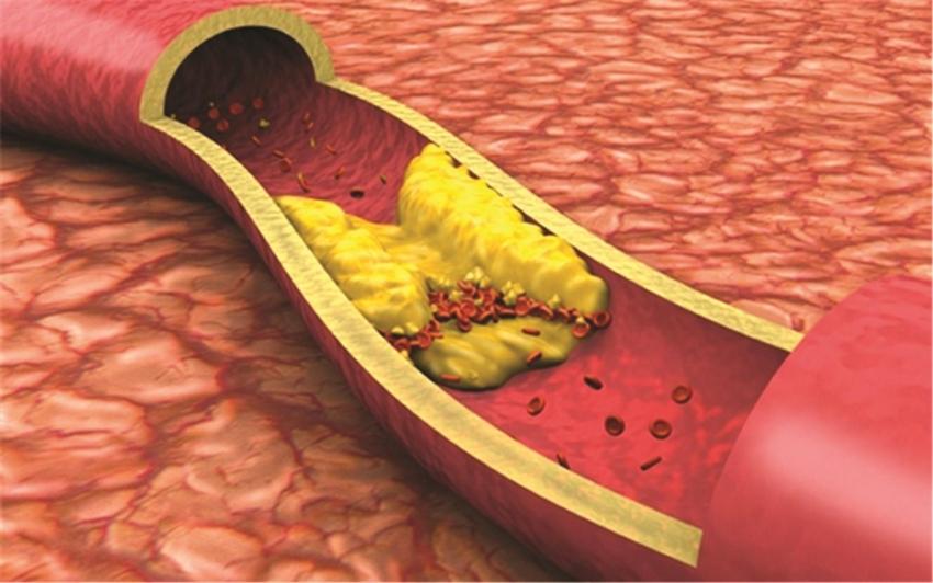 الكوليسترول.. كيف تخفضه دون أدوية خلال 90 يوما؟