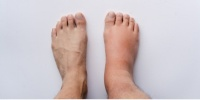 تورم القدمين.. الأسباب والعلاج